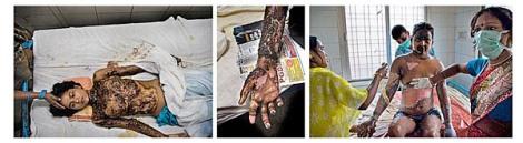 1Mujeres quemadas en el Hospital Gubernamental de KABIR CHOURA, Benarés, India